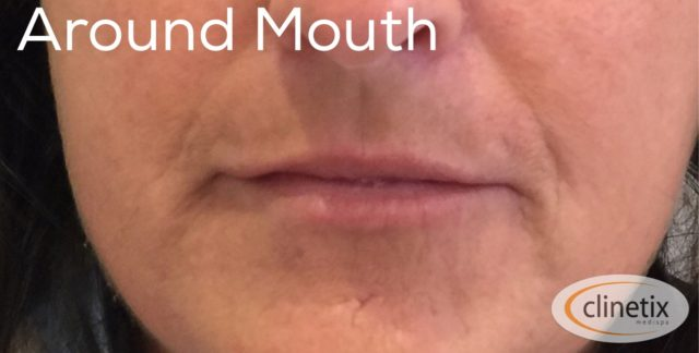 Dermal Fillers | Dermal Filler Treatments Glasgow | Clinetix