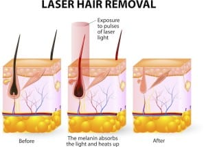 Laser Hair Removal copy