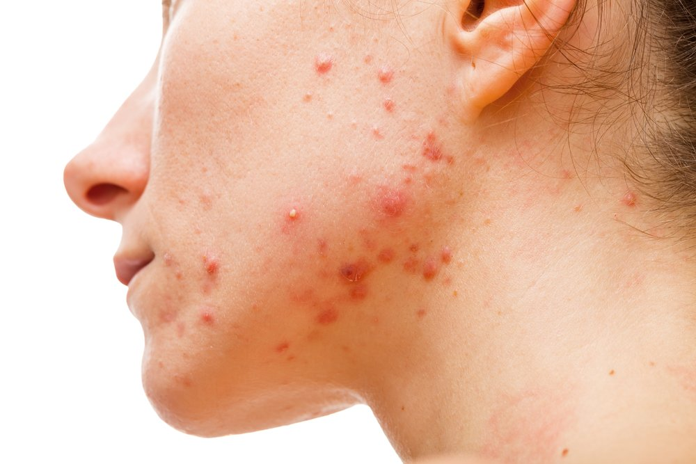 Acne and Acne Scarring treatments at Clinetix Rejuvenation