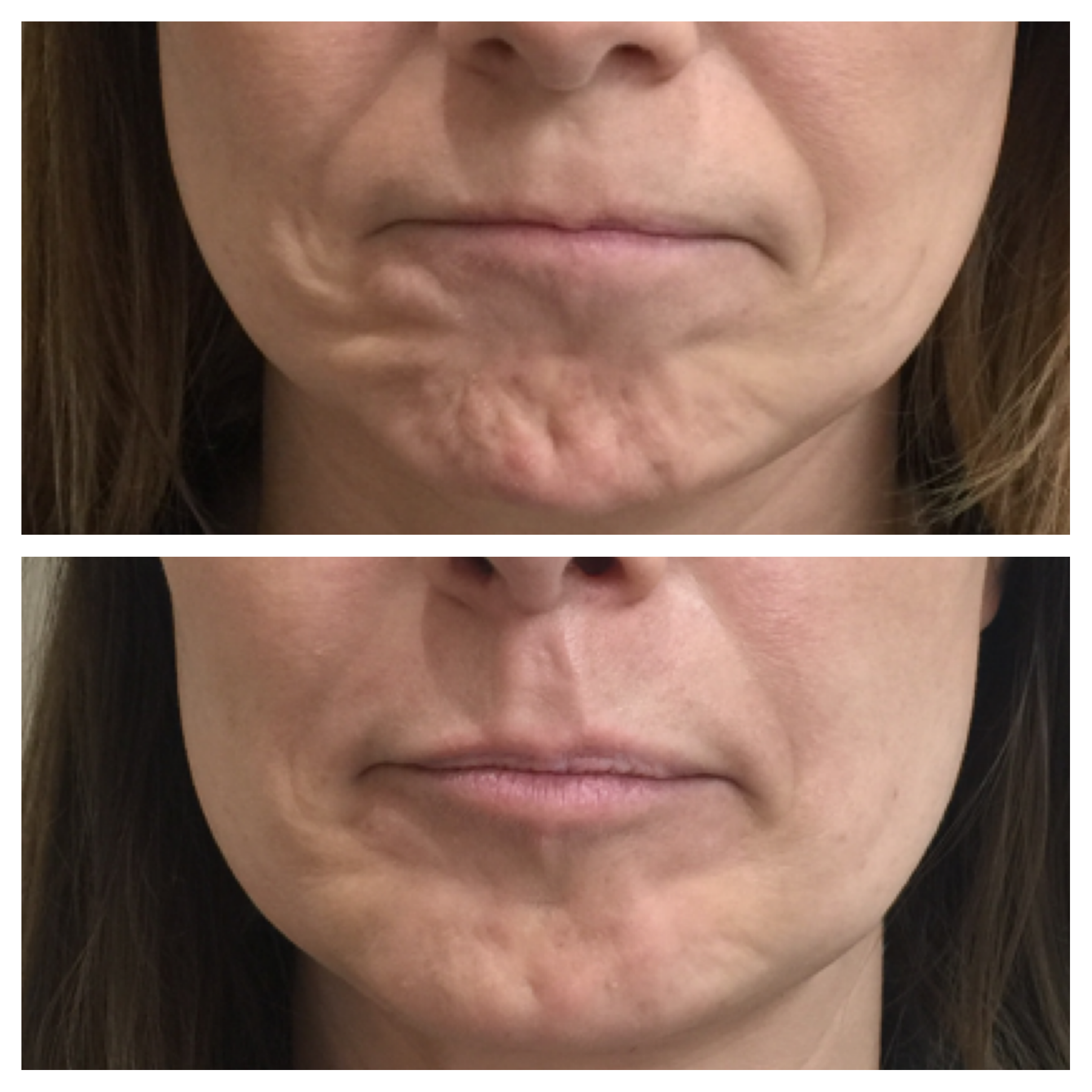 Botox injections in the chin by Dr Ravichandran at Clinetix Glasgow to improve the appearance of dimpling and roughened skin over the chin.