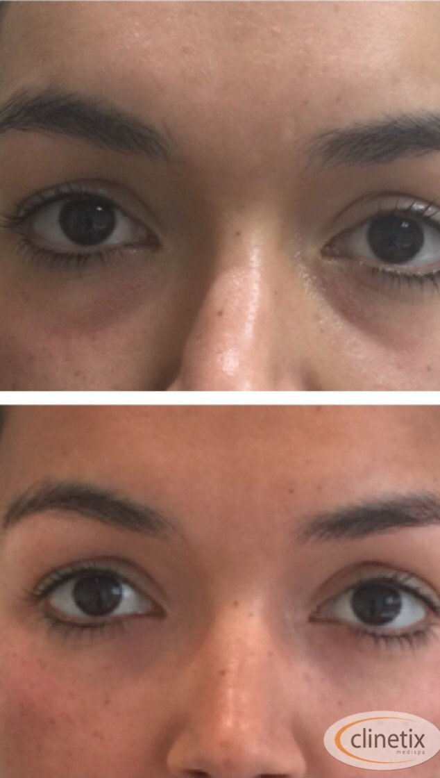 Clinetix Dermal Fillers in Tear Troughs to reduce dark circles