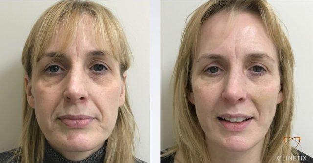 The Clinetix Face Lift | Clinetix