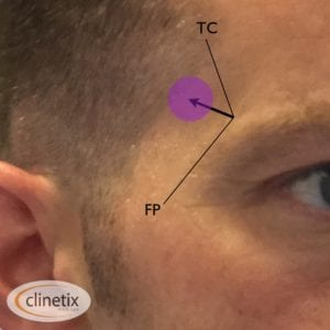 Fig. 2 Clinetix