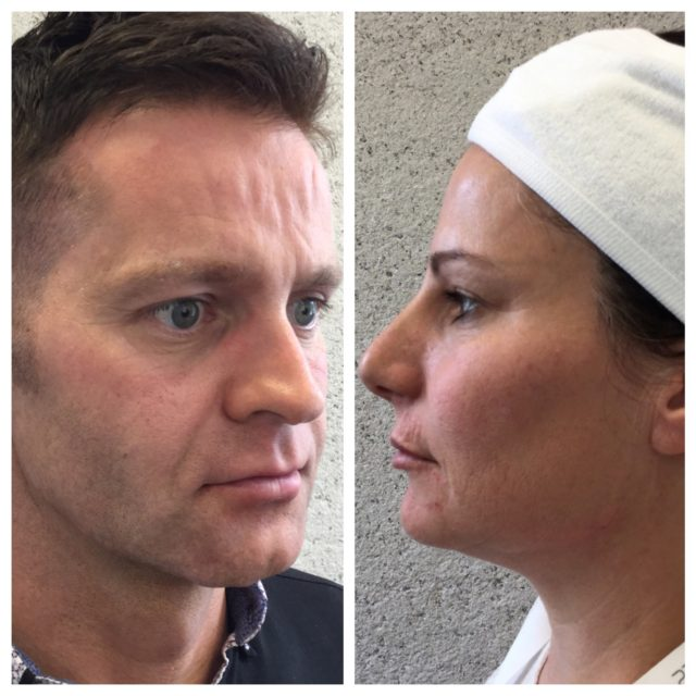 Male rejuvenation vs female rejuvenation approaches at Clinetix Rejuvenation
