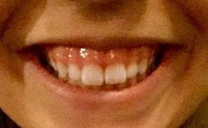 Gummy Smile Reduction