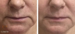 Nasolabial Folds & Marionette Lines Treatment at Clinetix - Glasgow, Scotland